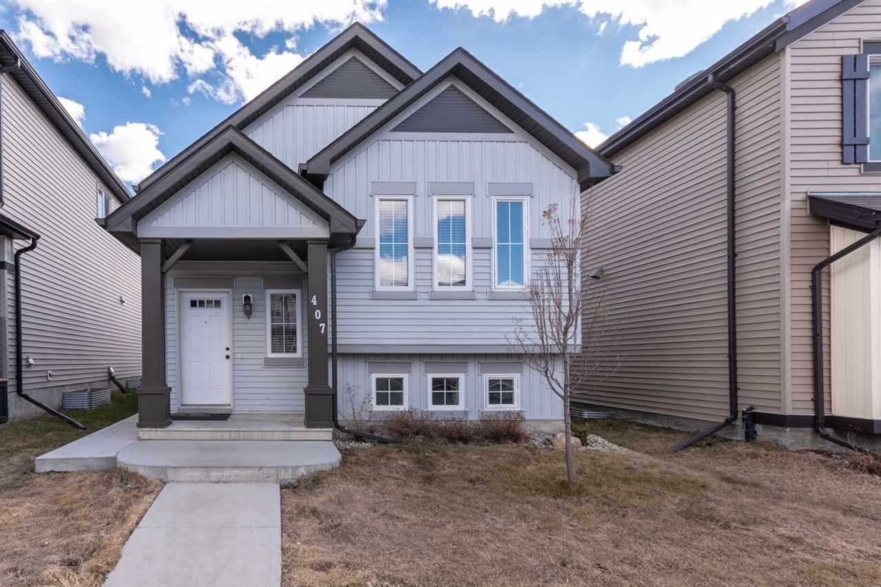 407 Watt Blvd, Edmonton, MLS® # E4153350